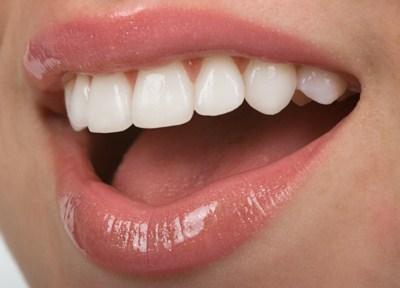 da28bf_dental2